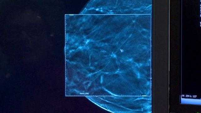 3D mammography imaging