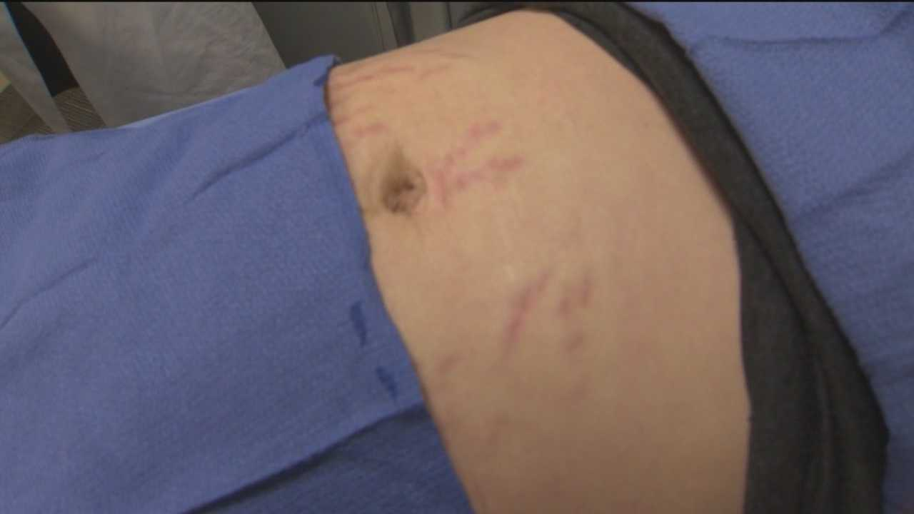 Hate stretch marks? There are removal options