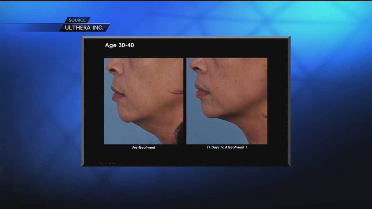Procedure uses sound waves to combat aging