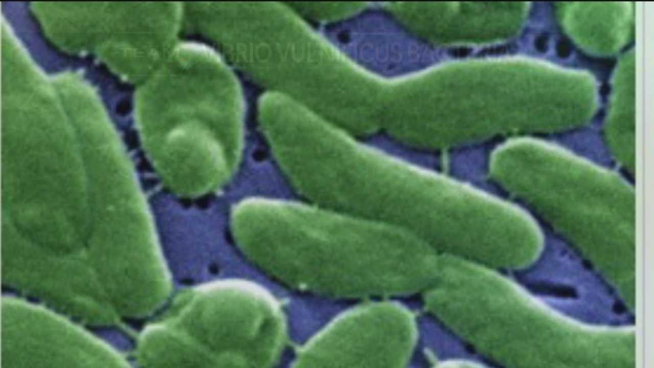 27274894 Vibrio vulnificusis is naturally occurring and found in salty bodies of water. The scariest thing is how fast it spreads.
