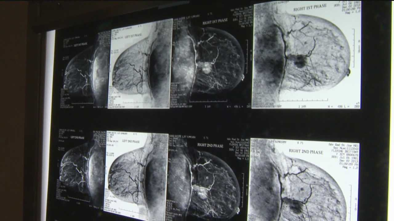 A new treatment that St. Joseph Medical Center doctors are using for patients with a specific, highly aggressive form of breast cancer is having great success.