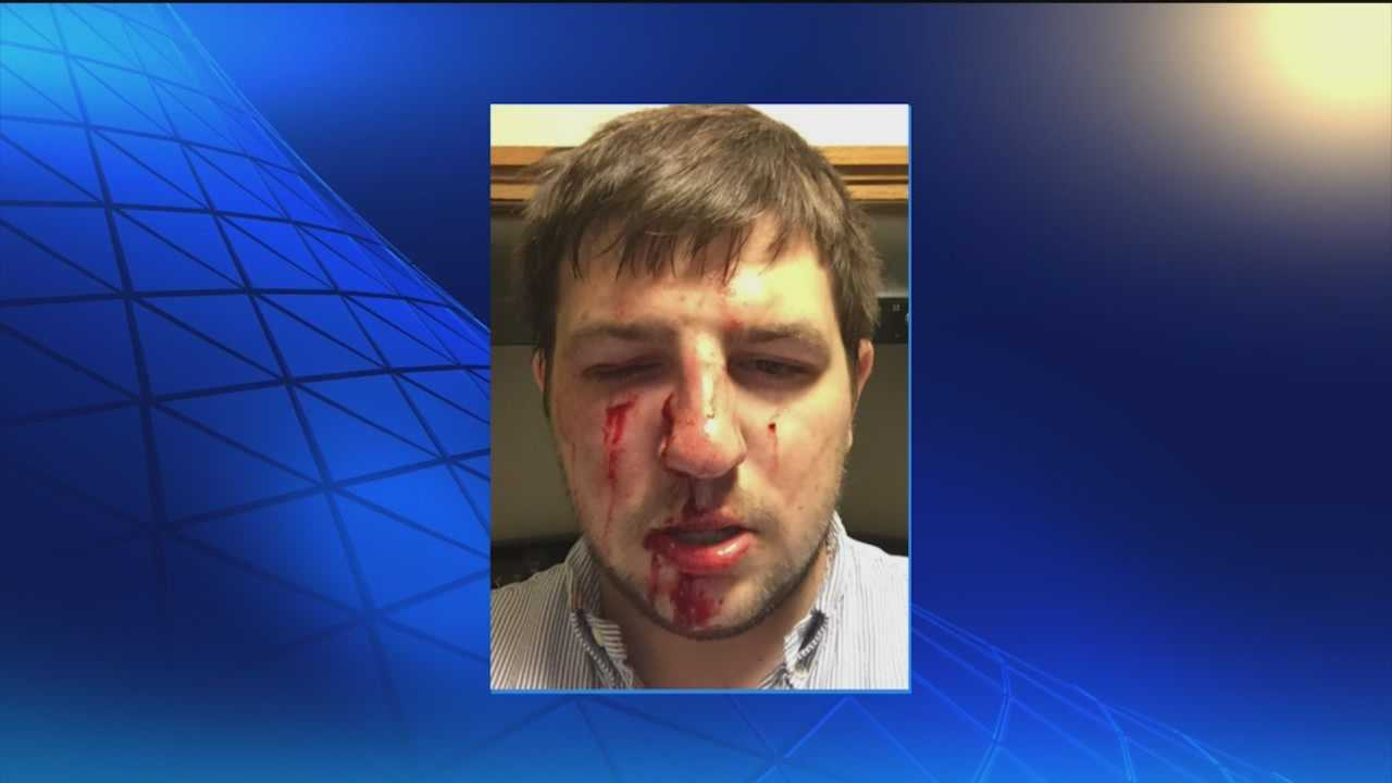 A local DJ attacked in downtown Baltimore believes he was targeted because he is gay.
