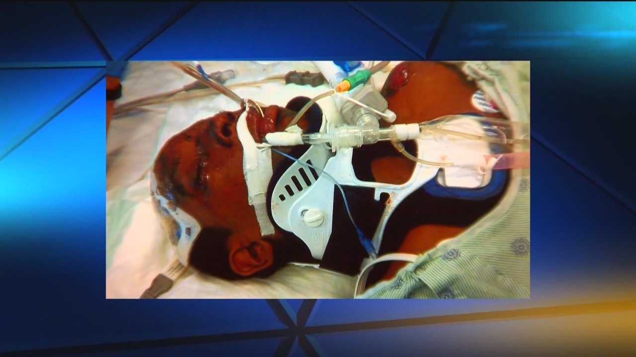 A Baltimore family is suing the Police Department after an officer struck a boy in Hampden.