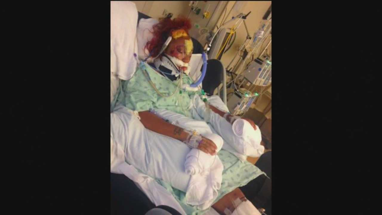 A Baltimore mother of three is fighting for her life after she was struck in a hit-and-run.
