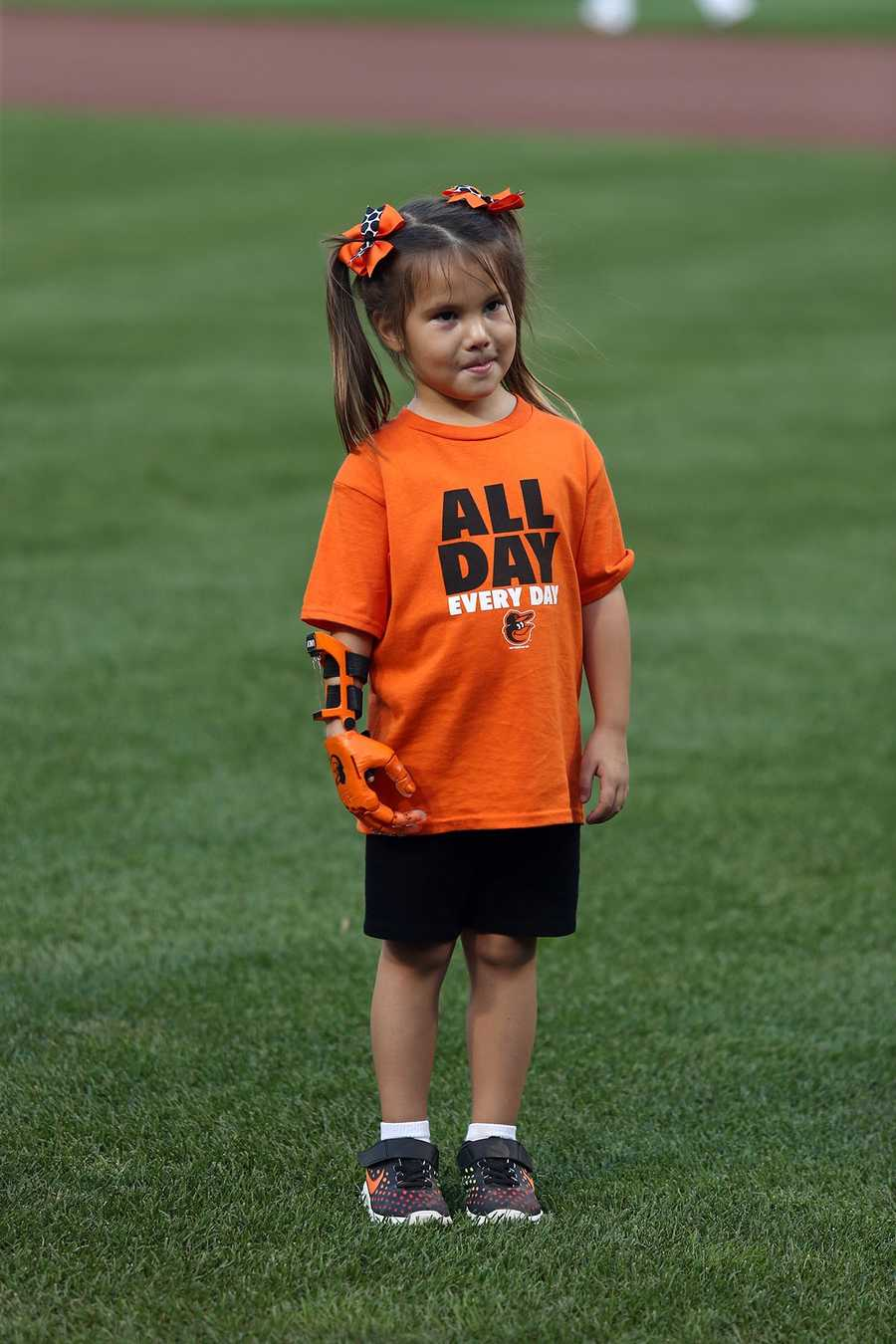 Hailey Dawson, 5, of Las Vegas, was born with Poland Syndrome, a rare birth defect that causes underdevelopment of the pectoral muscle on one side of the body and deformation of the hand.