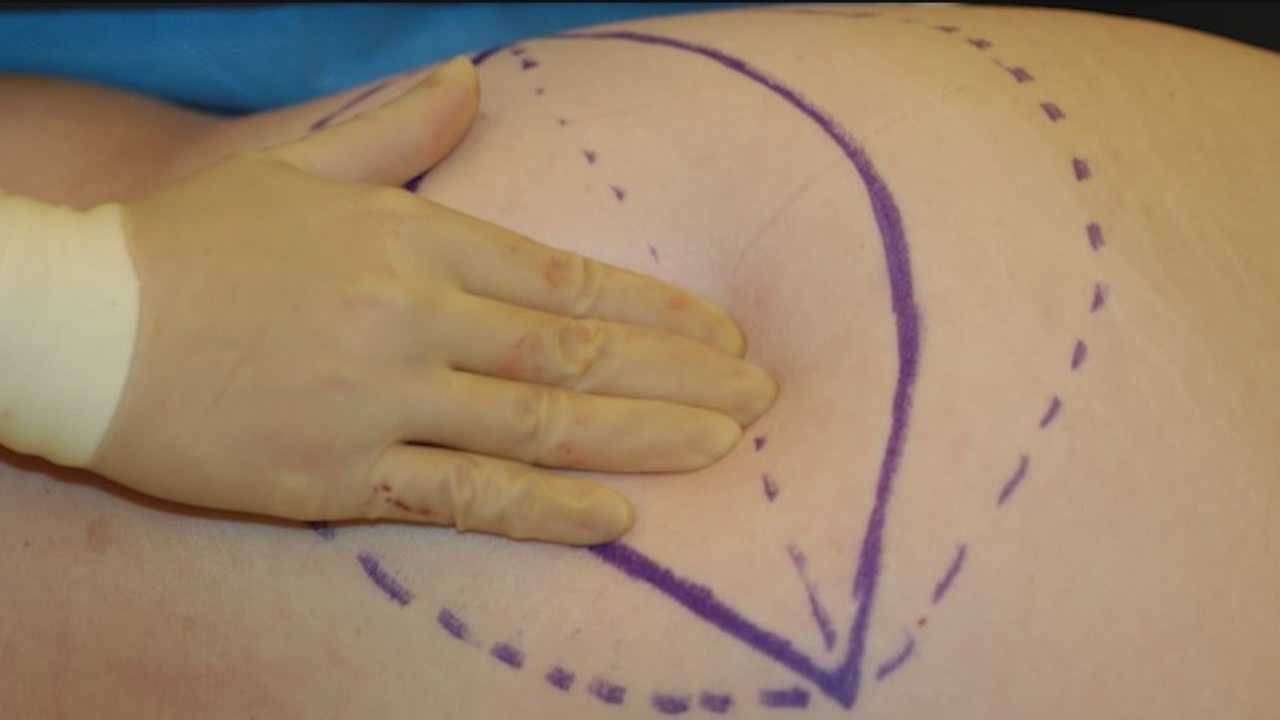 These days breast reconstruction after cancer surgery isn't just limited to implants. Procedures removing a woman's own tissue from her abdomen or back can be used to rebuild her breasts.