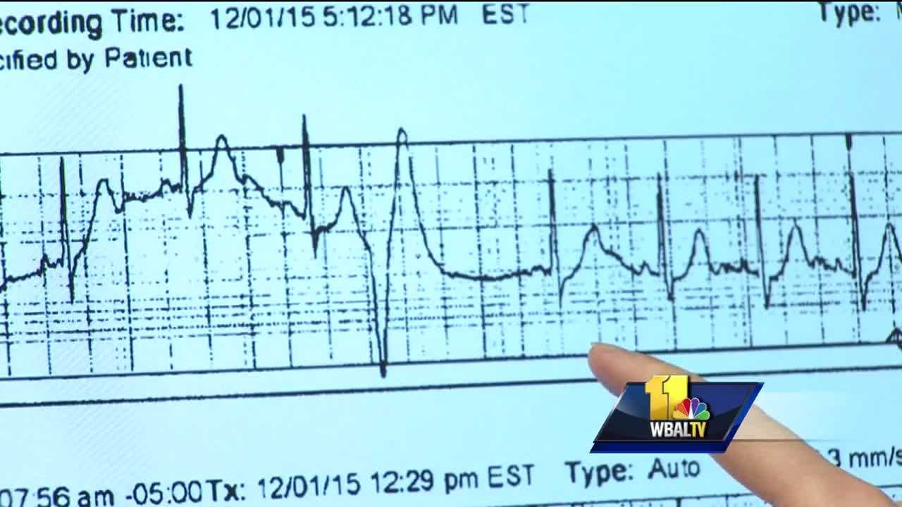 Many people, at some time in their lives, experience heart palpitations -- that feeling when your heart suddenly beats rapidly. Mercy Medical Center Dr. Laura Hahn said heart palpitations are not unusual and they don't always feel the same. Hahn said there are many reasons why people get heart palpitations. And some of those things that can speed up your heart can be anxiety or stress or stimulants like caffeine or nicotine, fever and dehydration. But palpitations can be a sign of something serious if they persist.
