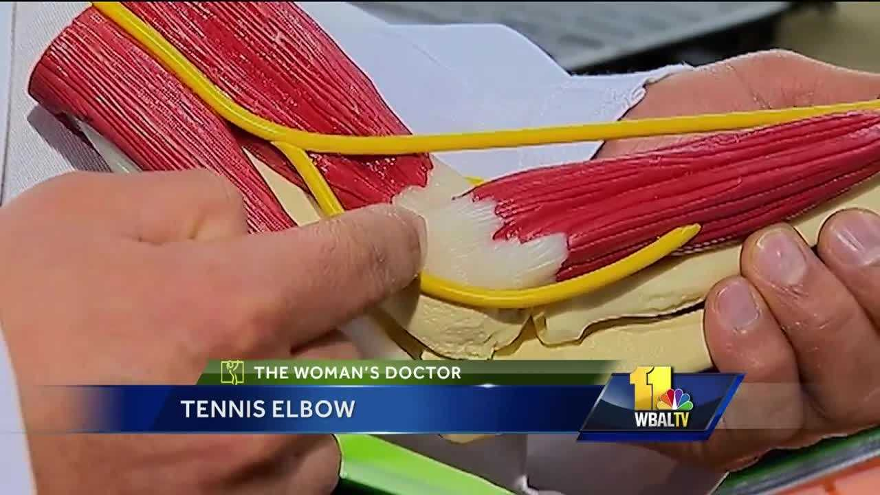 It is called tennis elbow, but you do not have to play tennis to get it, doctors say. Medical experts describe tennis elbow as a painful condition where the elbow muscles and tendons wear out from injury or overuse. Mercy Medical Center Dr. Vipul Nanavati said the good news is most of the time tennis elbow runs its course and gets better with rest, exercise and therapy. But when that doesn't help, surgery is the final option.