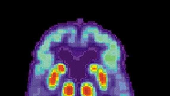 Alzheimer1 - 30888837