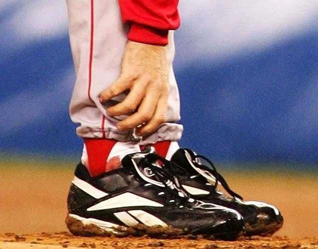 """""""The Bloody Sock"""" Pitching with a surgically repaired tendon in his ankle, Curt Schilling won Game 6 of the 2004 American League Championship Series against the New York Yankees on October 19, 2004. By the end of his time on the mound that night, his white sock was soaked with blood."""