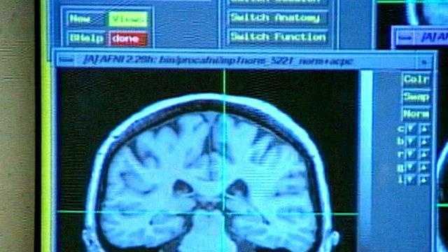 Concussion, x-ray - 18578332
