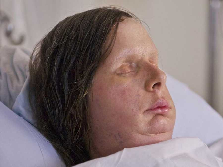 Brigham and Women's Hospital released the first post-surgery photograph of Charla Nash, who received a full face transplant.