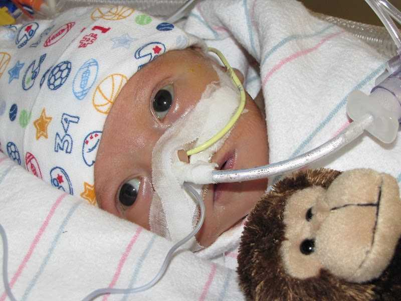 Four days after Lucas was born, he underwent open-heart surgery in order to divert blood flow to his lungs and allow that organ to take on some of the heart's work.