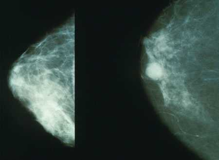 3.) Breast Cancer -- a mammogram