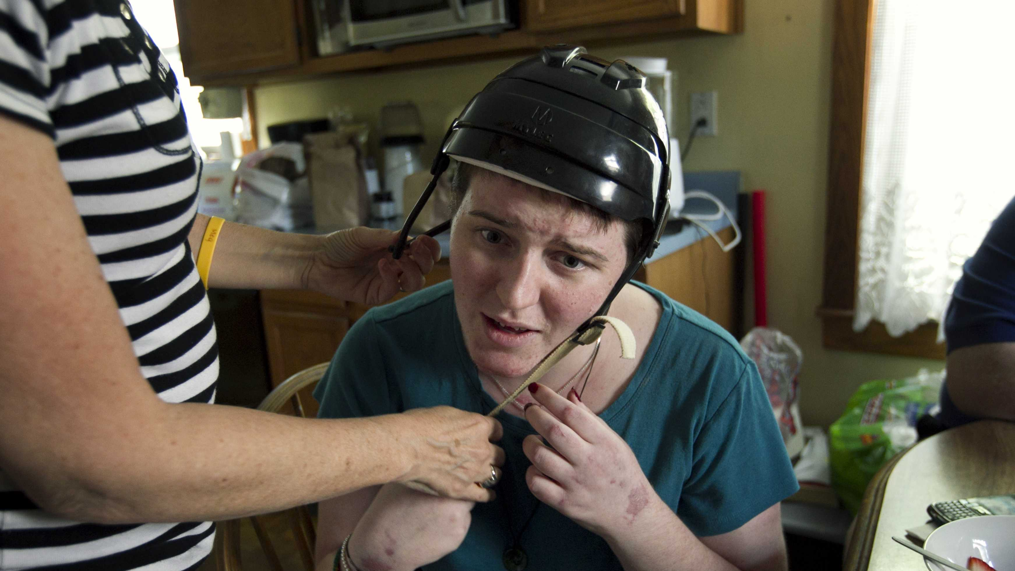 In this Thursday, Aug. 2, 2012 photo, Meg Theriault is helped with a helmet by her mother, Deb Theriault, left, as she talks with her family about the logistics of her daily life recovering from a traumatic brain injury at their home in Salisbury, Mass.