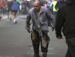 Costello, who was with friends near the Boston Marathon finish line, was captured in photos in the minutes after the bombings with his jeans shredded and blackened, his body so burned that he was left needing pig skin grafts on most of his right arm and right leg.