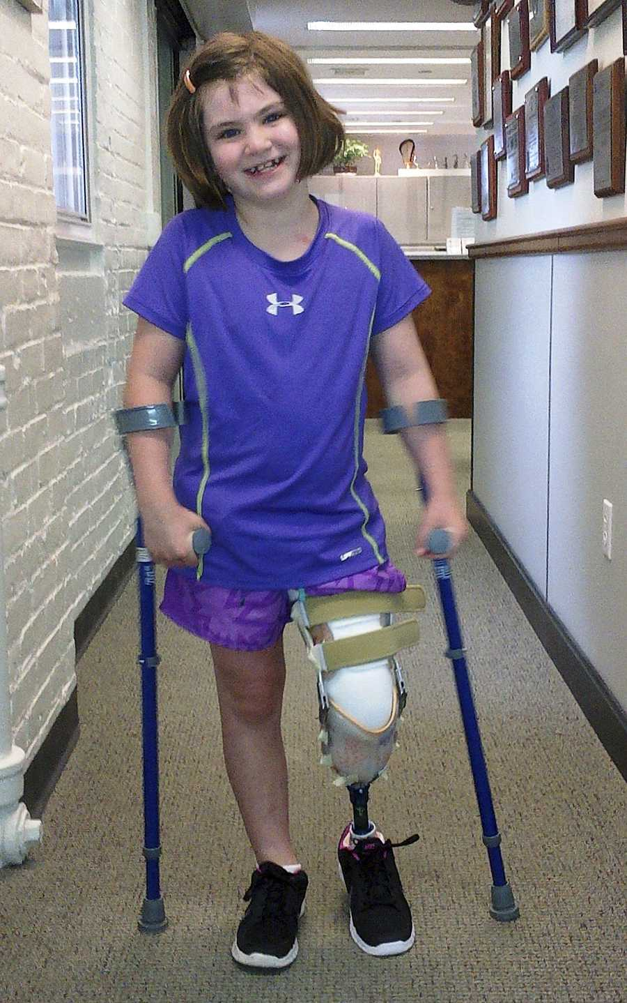 """This photo released Thursday, Aug. 15, 2013, by the Richard family shows Jane Richard, 7, who lost part of her left leg in the Boston Marathon bombings on April 15, 2013, walking on a prosthetic leg in Boston. The family of Jane and her late brother Martin, 8, who was killed by one of the blasts, said in a statement that the little girl is already dancing on her prosthetic leg and """"struts around on it with great pride."""""""