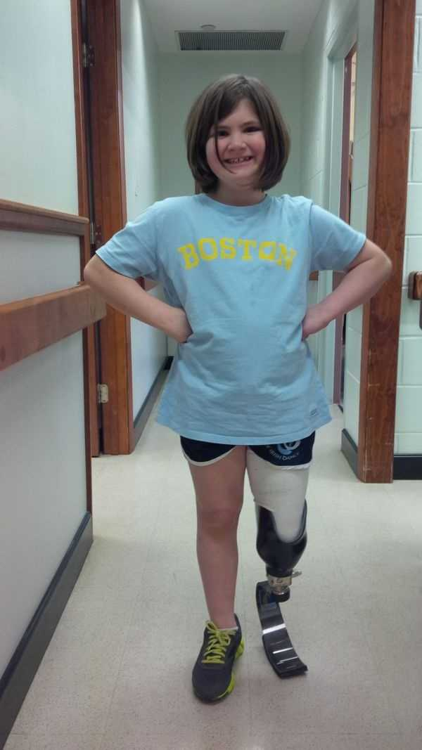 This photo released March 21, 2014, by the Richard family shows daughter Jane Richard wearing prosthetic leg fitted the preceding week in Boston. Jane and her mother were injured when a bomb exploded near the finish line of the Boston Marathon on April 15, 2013. Her brother, Martin Richard, was one of three people killed in the bombings.