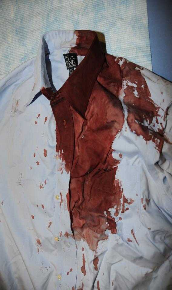 The FBI agent suffered a head injury when he was struck with a coffee table, officials said. This is the blood-soaked shirt he was wearing at the time.