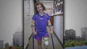 Jane has been fitted with a prosthesis after losing her lower leg.