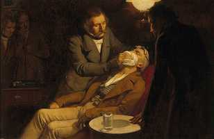 1846: William T.G. Morton, a Boston dentist, first demonstrated the use of anesthesia in surgery at Massachusetts General Hospital, using a specially designed glass inhaler containing an ether-soaked sponge.