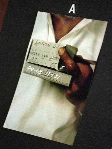 This picture, taken June 13, 1994 (the day of the murders), shows a close-up of O.J. Simpson's cut finger as part of evidence in the preliminary hearing in Los Angeles on July 7, 1994.