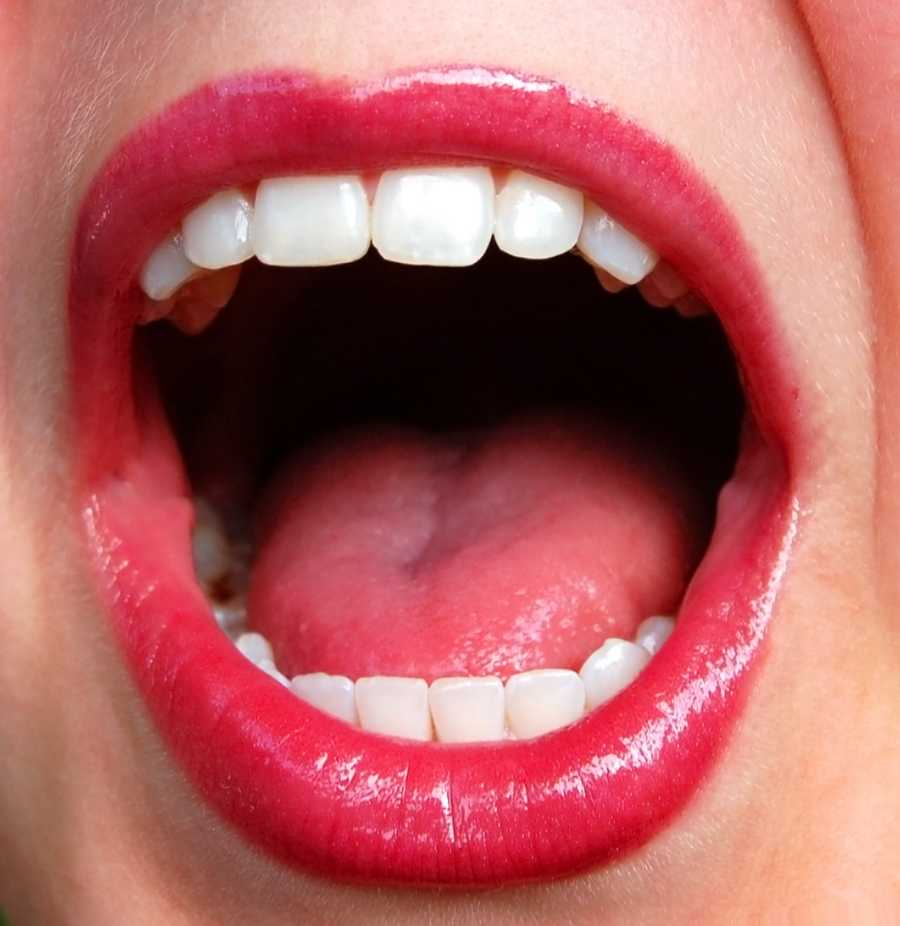 A bright red tongue ndicates a lack of nutrients in the body, particularly iron and B vitamins.