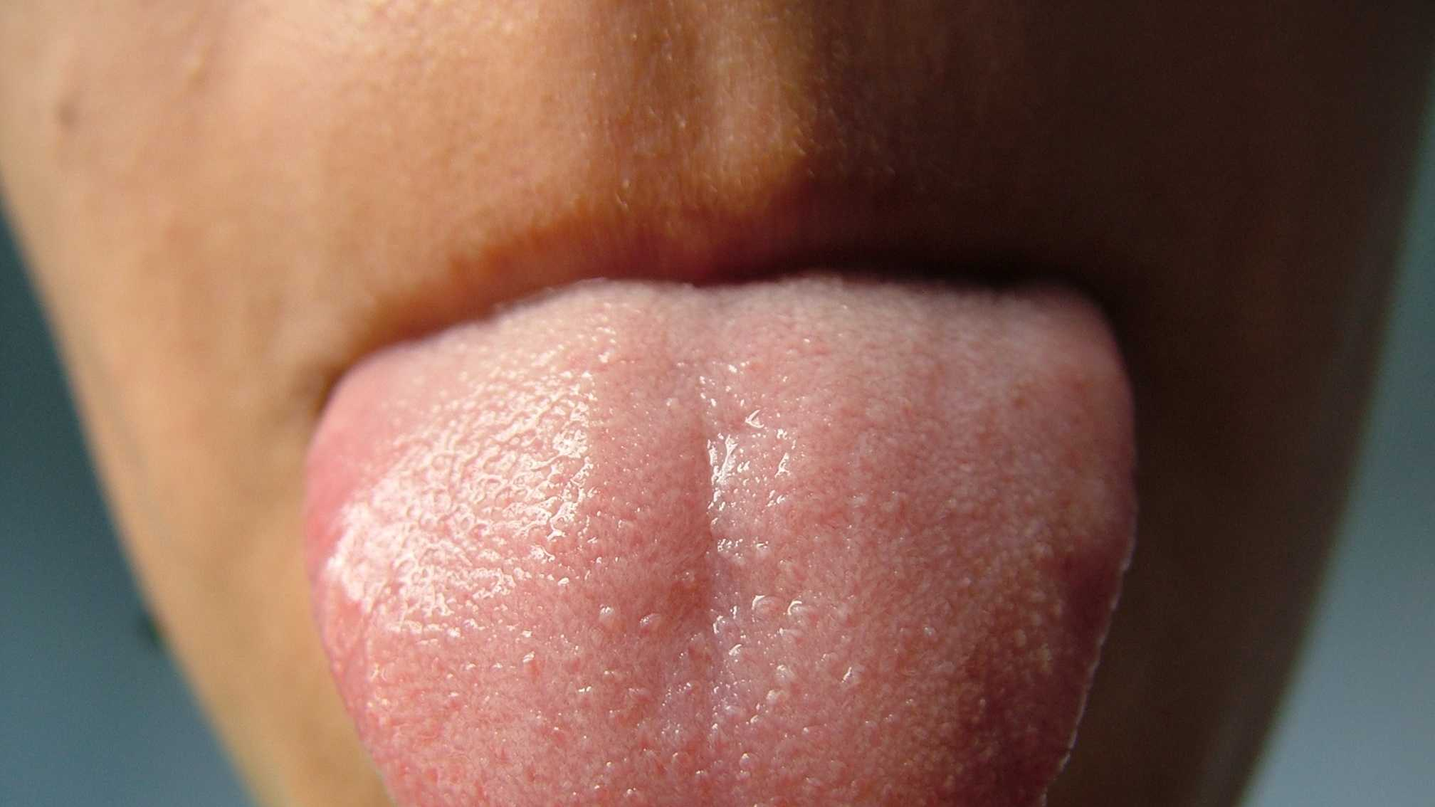 A pale tongue means that your blood is sorely lacking in haemoglobin, the iron-containing protein that's found in red blood cells.