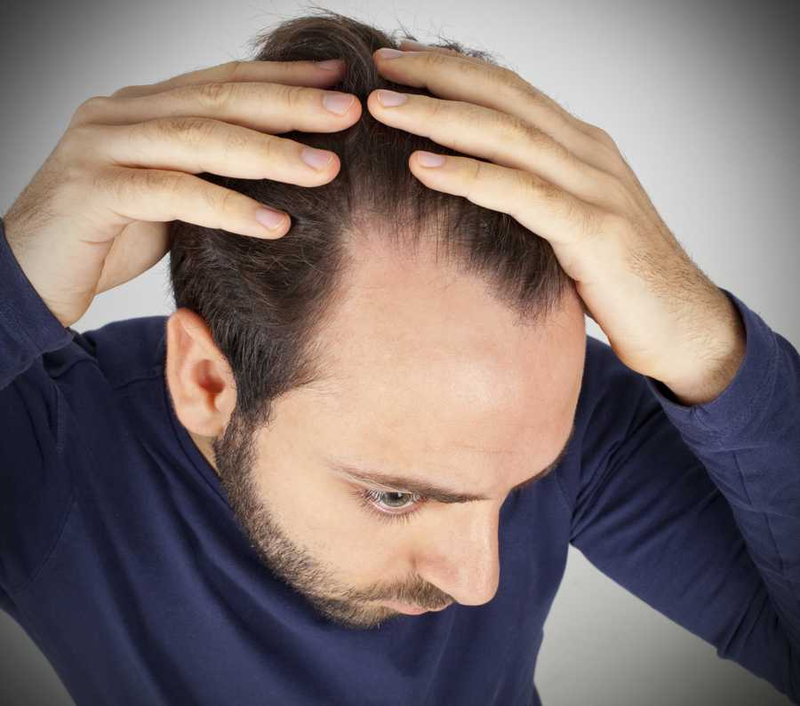 Losing your hair: Hair loss generally denotes sadness and rather melancholy circumstances.