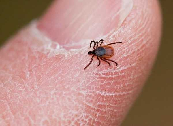 The spike of infected ticks in the state has caused state health officials to declare Lyme disease an epidemic. Here are the Massachusetts towns with the highest rates of Lyme Disease as measured between 2010 to 2014,
