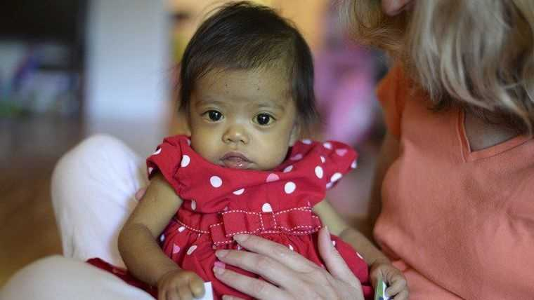 Hope Morrison, 17-Months, looks around while siting in adoptive mother, Cindy's, lap at their home in Andover.