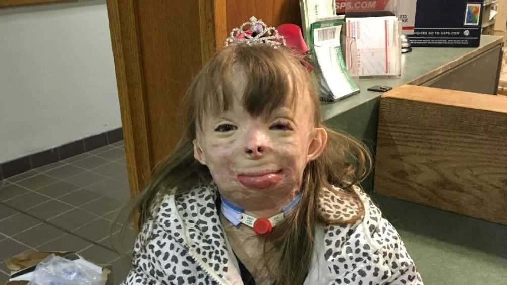 Safyre Terry, 8, wears a rhinestone tiara , one of the gifts she received Wednesday, Dec. 9, 2013, at a post office near her home in Rotterdam, N.Y. Safyre, who lost her father and three younger siblings and was burned over 75 percent of her body in a May 2013 house fire, has been receiving cards from across the country since her custodial aunt posted a her photo on Facebook with a message saying she'd like to get cards for a Christmas tree display stand. The post has been shared tens of thousands of times, and a crowd funding site has generated more than $177,000 for the family.