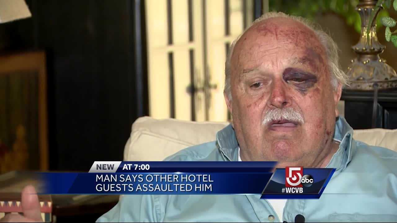A man says he was assaulted a hotel in Fall River, but he is the one facing charges.