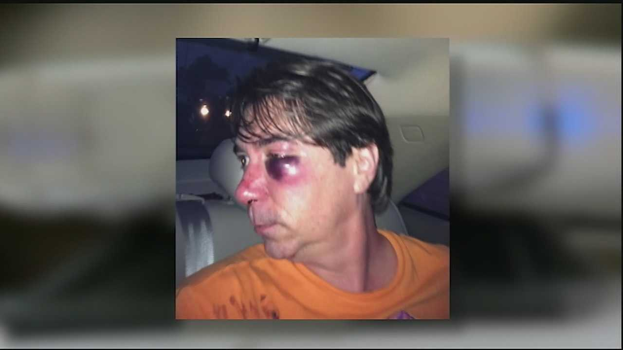 An Algiers man is hoping the NOPD can help him track down the person responsible for allegedly pulling him from a cab and beating him.