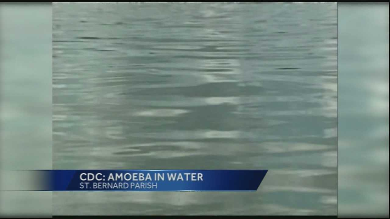 Some precautions you should take after the Centers For Disease Control detected a deadly amoeba in the St. Bernard water system.