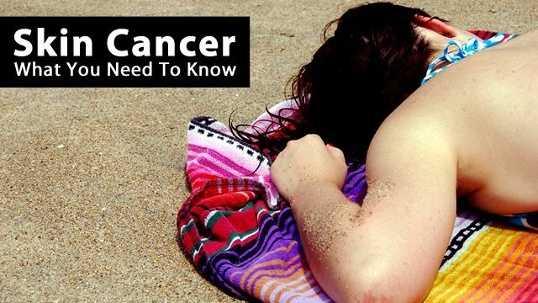 0528-skincancer-title-jpg.jpg