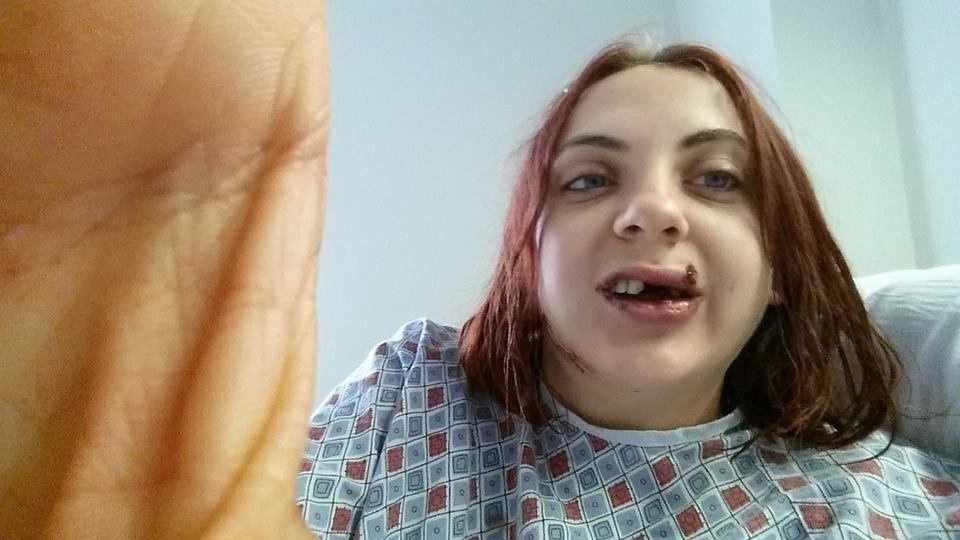 Amy Matthews suffered a mouth injury in the Bourbon Street shooting on June 29. A Facebook page was formed to help repair her mouth.