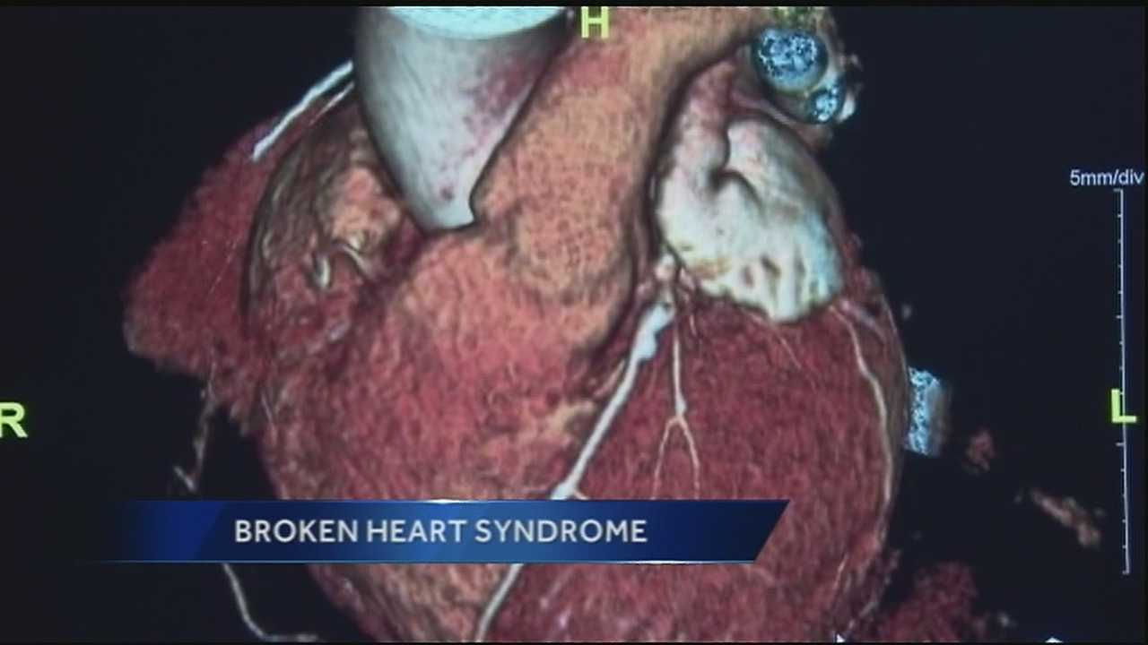 WDSU medical editor Dr. Corey Hebert talks about how symptoms are similar to those of a heart attack.