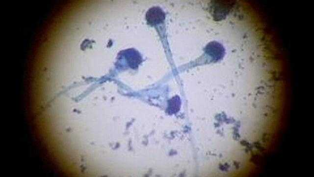 img-More meningitis cases reported in Marion County