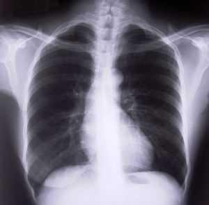 3: Chronic lower respiratory diseases - 10,525 deaths