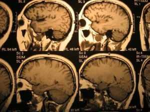 5: Cerebrovascular diseases (Stroke) - 8,372 deaths