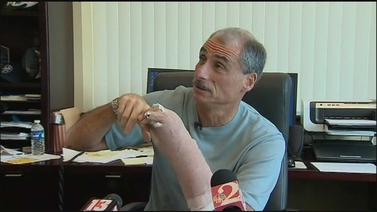 Daytona Beach's police chief is nursing a broken hand after a man attacked him on Main Street during Bike Week.