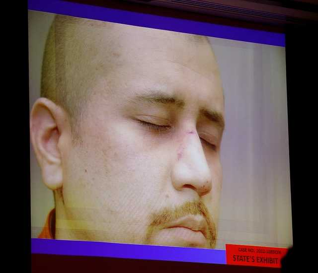 5. Zimmerman's nose likely broken, physician's assistant saysFolgate testified that Zimmerman's nose was likely broken when she saw him the day after he killed Martin, but her office doesn't do X-rays. She recommended he see an ear, nose, throat specialist to get it checked out, but he said he wasn't going to do that.