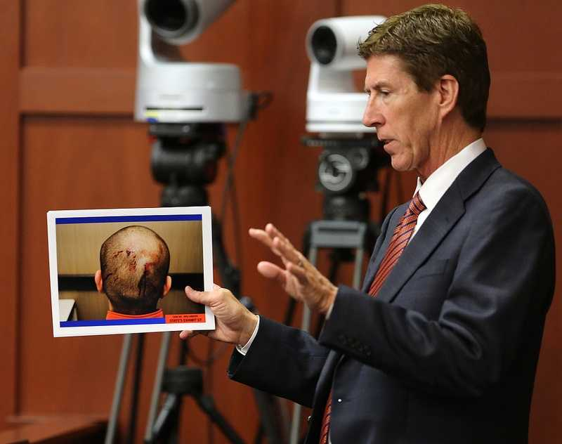 Defense attorney Mark O'Mara holds up photos of George Zimmerman taken the night of the Trayvon Martin shooting, during cross examination of Jacksonville medical examiner Valerie Rao in the George Zimmerman trial in Seminole circuit court, in Sanford, Fla., Tuesday, July 2, 2013. Zimmerman is charged with 2nd-degree murder in the fatal shooting of Trayvon Martin, an unarmed teen, in 2012. (Joe Burbank/Orlando Sentinel/POOL)