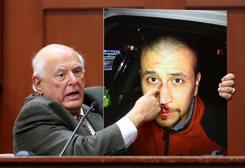 4. Zimmerman's head injuries consistent with concrete, expert saysDi Maio said the injuries to the back of Zimmerman's head are consistent with being slammed against concrete. He identified at least six injuries Zimmerman suffered during the struggle. A state witness said Zimmerman suffered as few as three injuries.