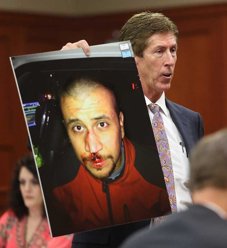 Defense counsel Mark O'Mara holds up the photo of George Zimmerman from the night of the Trayvon Martin shooting, during closing arguments on the 24th day of the trial at the Seminole County Criminal Justice Center, in Sanford, Fla., Friday, July 12, 2013. Zimmerman is charged with 2nd-degree murder in the fatal shooting of Trayvon Martin, an unarmed teen, in 2012. (Joe Burbank/Orlando Sentinel/POOL)