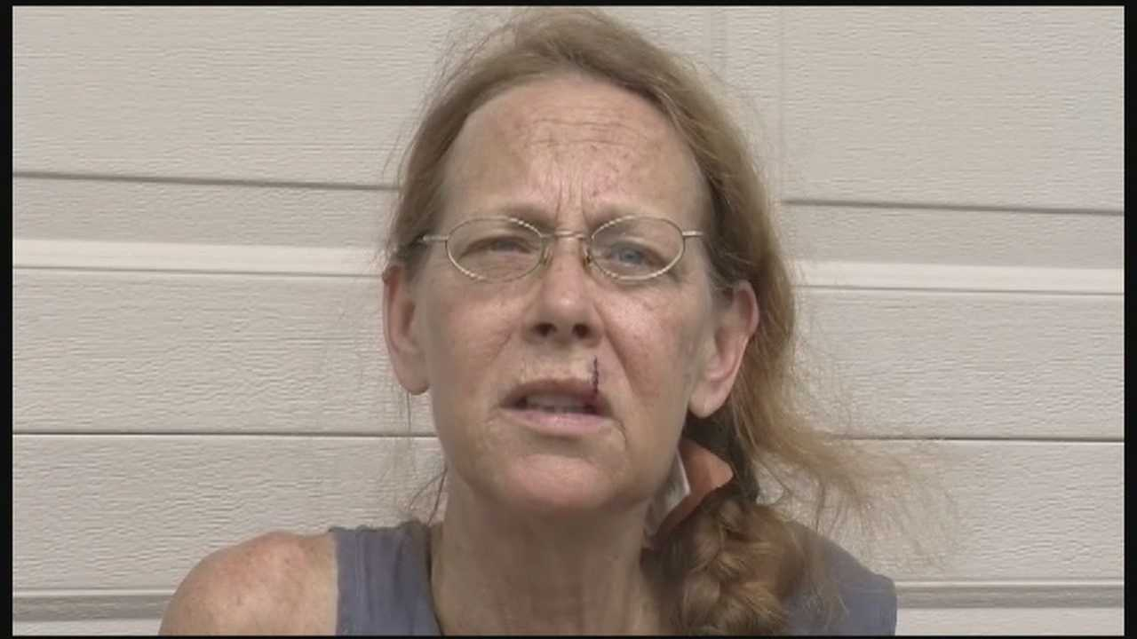 Woman attacked by pack of dogs: 'It was a frenzy'