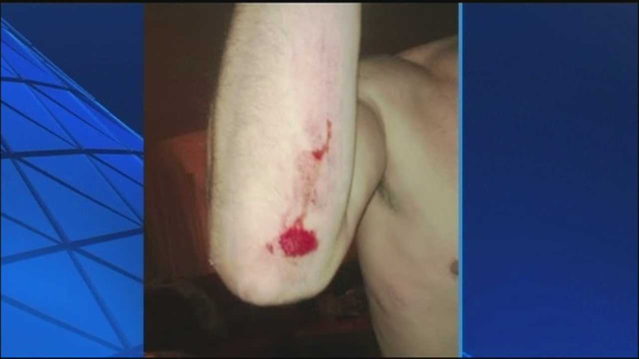 Lake County man's injuries from 'bear attack' really came from chasing bear, officials say