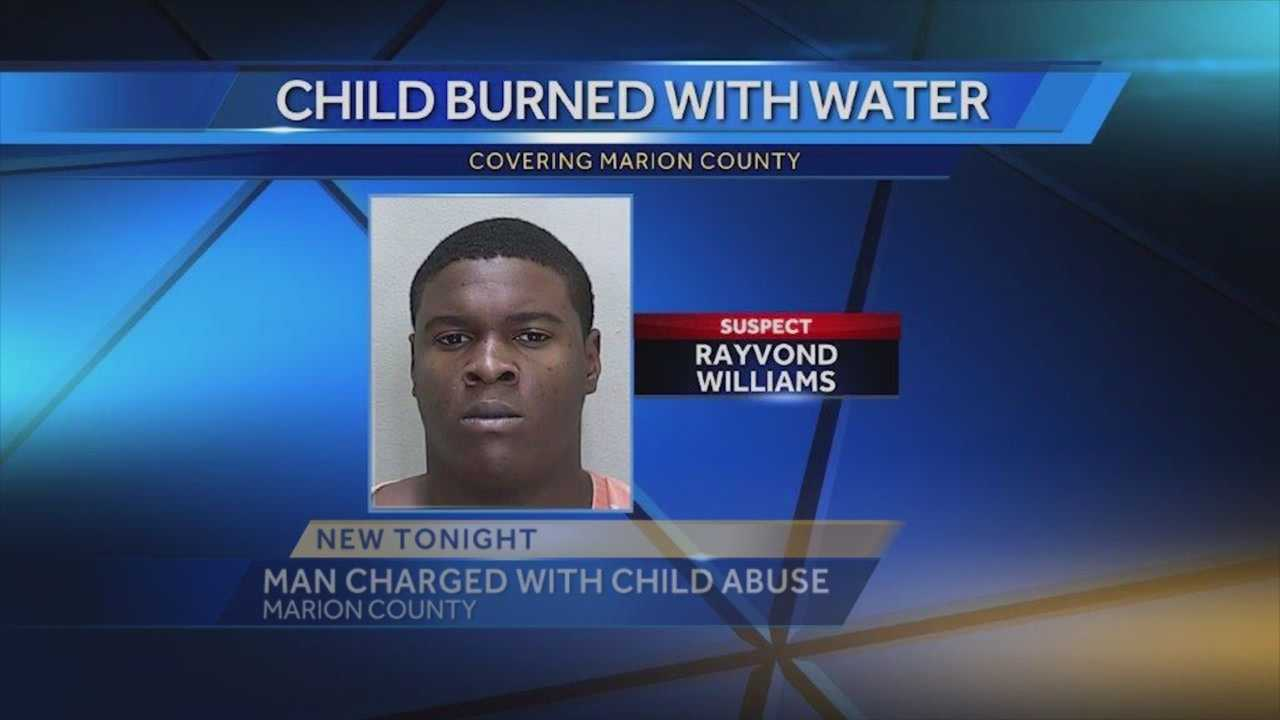A man is accused of leaving a 2-year-old in scalding hot water after he wet the bed, causing serious burns and his skin to peel off, according to the Marion County Sheriff's Office. Summer Knowles (@WESH2SummerK) has the story.
