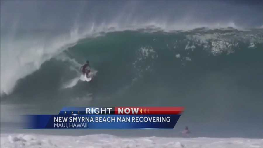 New Smyrna Beach Surfer Recovering After Wipeout In Hawaii